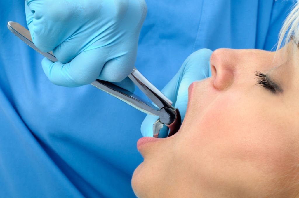 Tooth extraction procedure on female patient - Stockton, CA