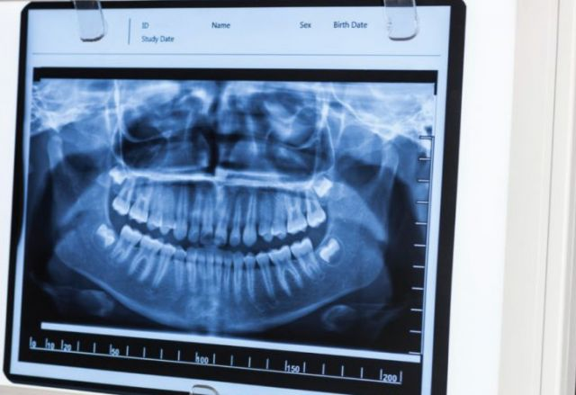Signs-Your-Wisdom-Teeth-Are-Emerging-blog-768x511